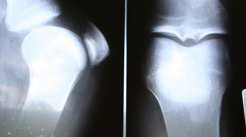 knees-1535761-1279x852